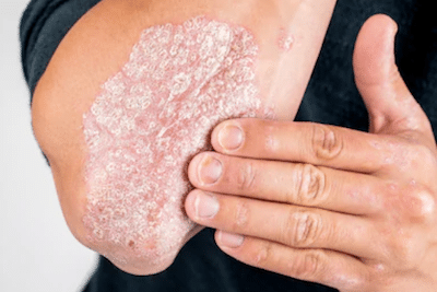 psoriasis-condition-dermasurge-clinic-harley-street